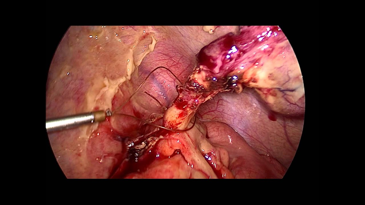 PERFORATED APPENDICITIS ; LAPAROSCOPIC APPENDECTOMY - YouTube