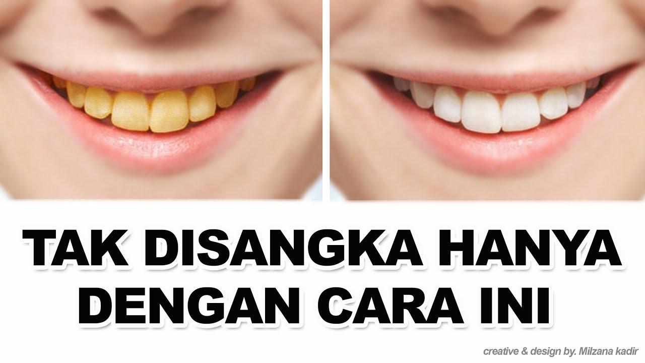Cara Memutihkan Gigi Secara Alami Menyembuhkan Sakit Gigi Youtube