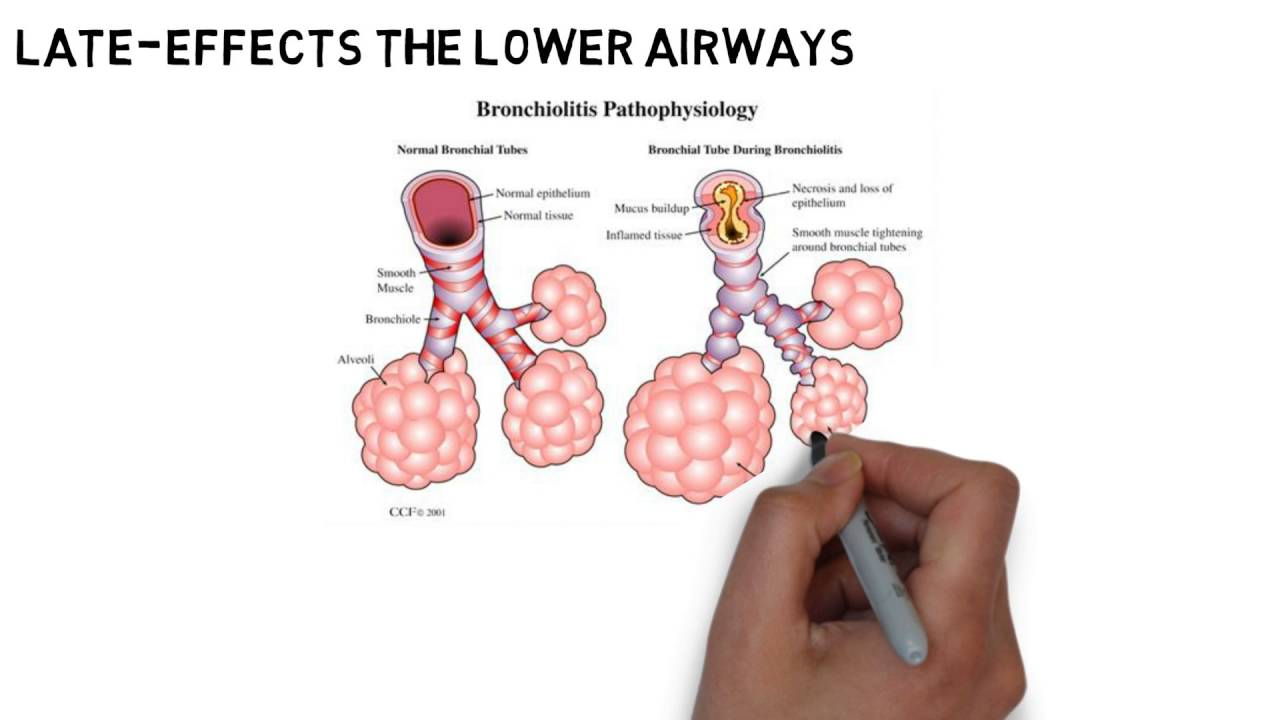 asthma definition etymology symptoms and treatment The emotional unseen causes of asthma are also a deep representative cry from  a soul to be loved and to be cared for.