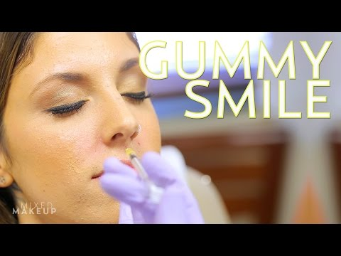 Fix a Gummy Smile with Botox + Giveaway Winner! | The SASS with Susan and Sharzad