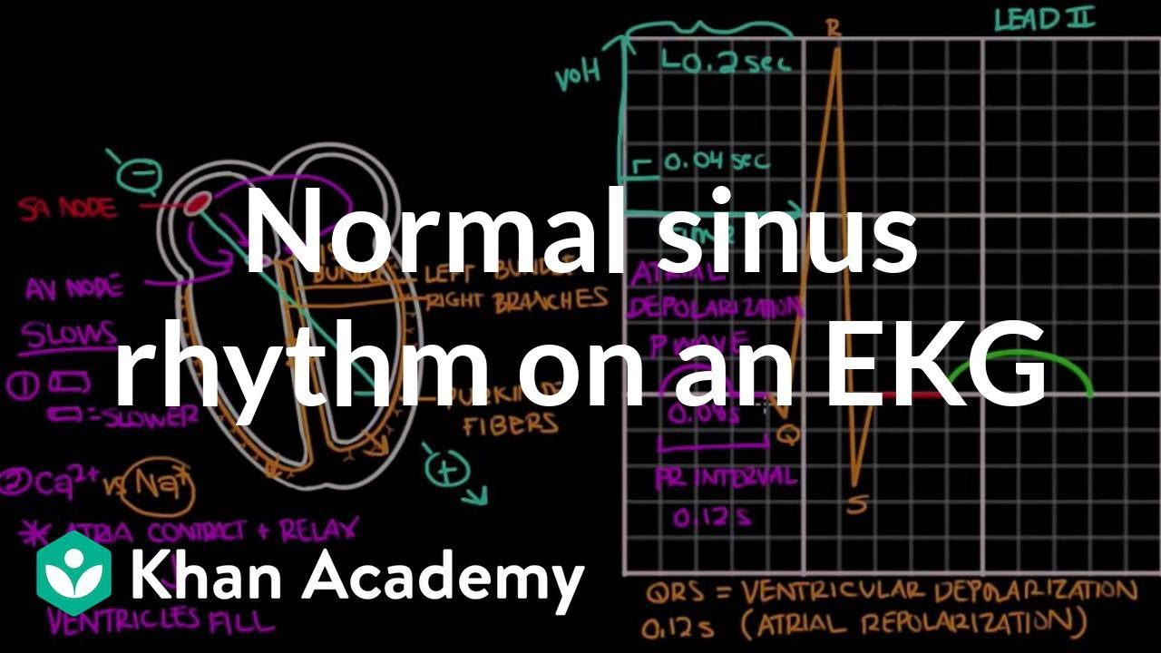 Normal sinus rhythm on an EKG (video) | Khan Academy