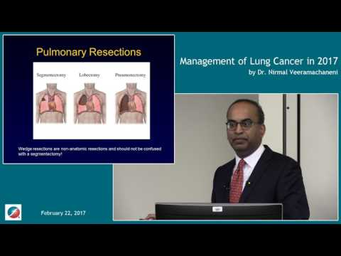 Management of Lung Cancer in 2017