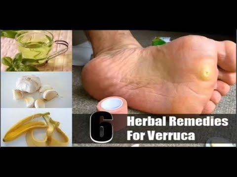 Health News: 6 Effective Herbal Remedies For Verruca