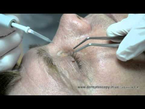 Фиброма - лечение, удаление, симптомы