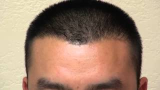 FUE Hair Transplant Restore Bald Corners Receding Hairline Surgery Men Dr. Diep www.mhtaclinic.com