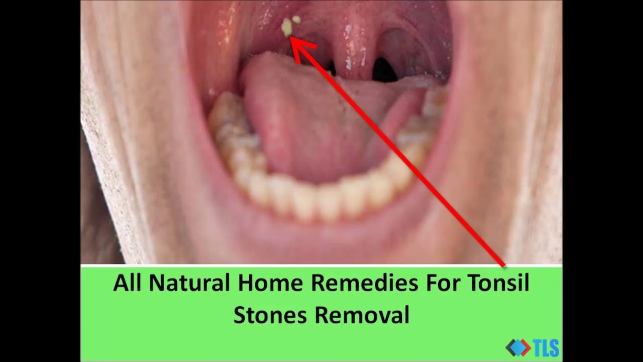 All Natural Home Remedies For Tonsil Stones Removal Youtube