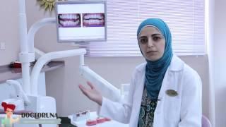 مشكلة تراكبات الاسنان - الدكتورة لانا دلبح Thumbnail