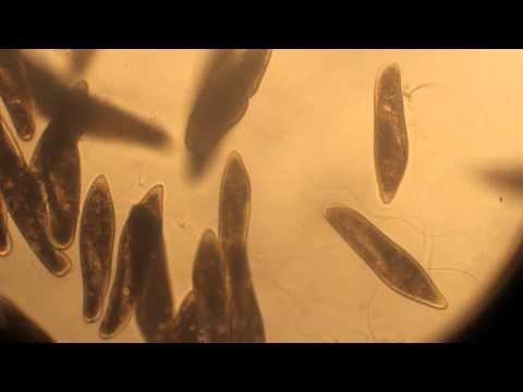 Pantoffeltierchen (Paramecium)