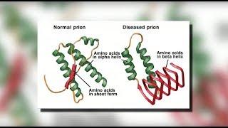 CJD Creutzfeldt-Jakob Disease - Mayo Clinic