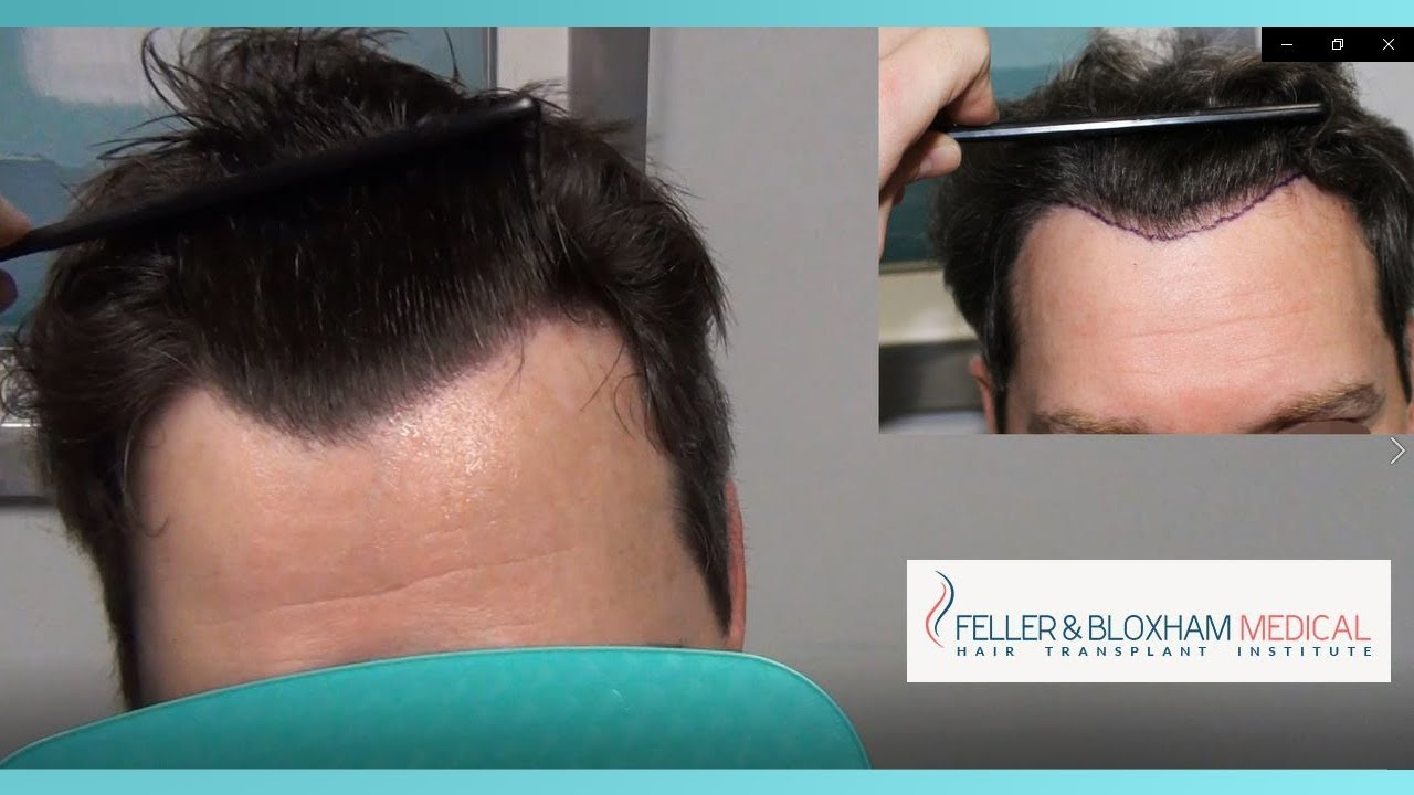 A Surprising Hair Transplant Scar Repair Hairline Fix And Cowlick Feller Bloxham Ny Youtube