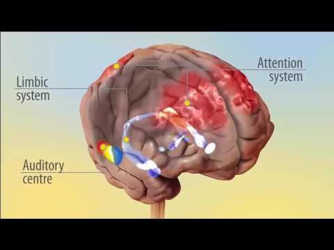 causes-of-tinnitus-&-how-tinnitusrelief-device-helps-patient-to-get-relief