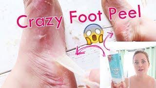 Baby Foot Mask | Ich ziehe meine FUßHAUT AB | Fußpflege- Hornhaut am Fuß entfernen | My SummerFoot