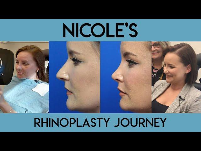 Nicole's Rhinoplasty Journey