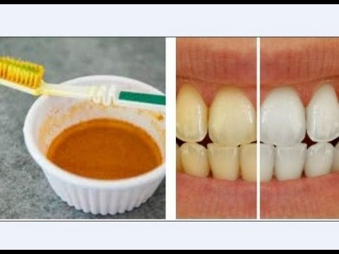 Teeth Whitening At Home With Coconut Oil And Turmeric Natural
