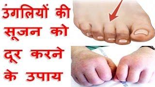 हाथ पैर की उंगलियों की सूजन को दूर करने के उपाय Finger Swelling Home Remedy