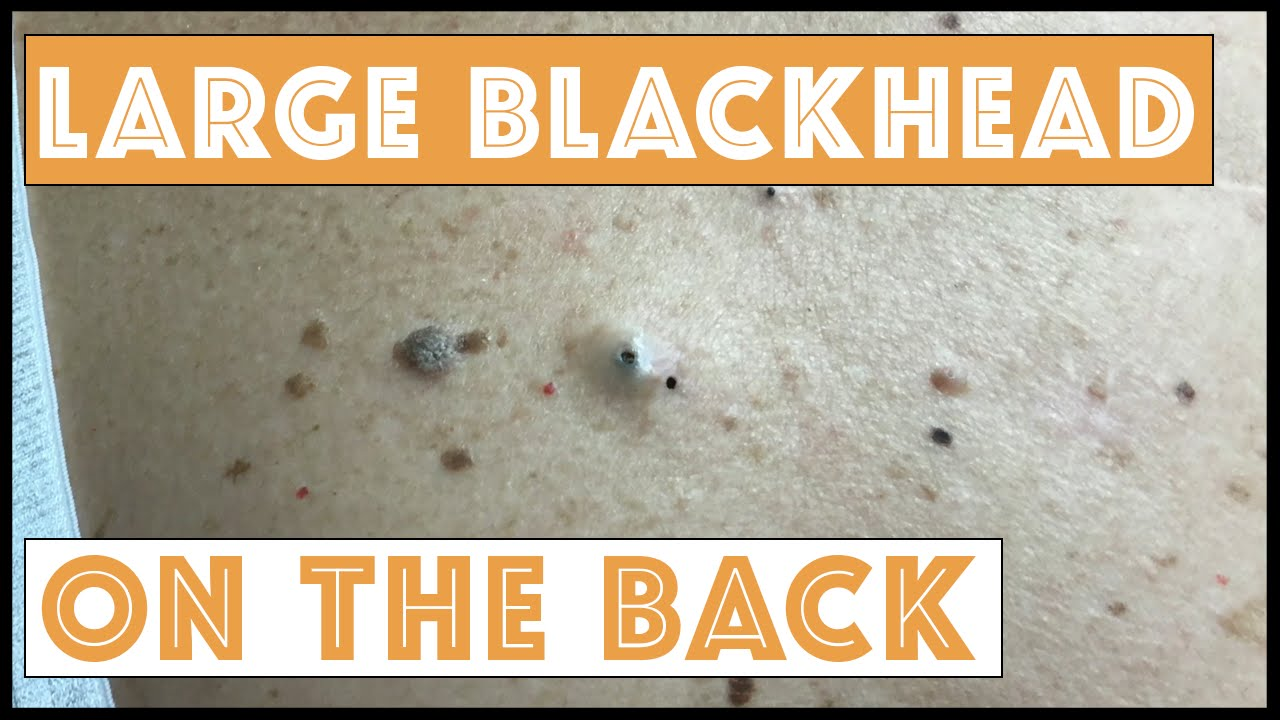 GRAPHIC: How doctors remove blackheads | Health24