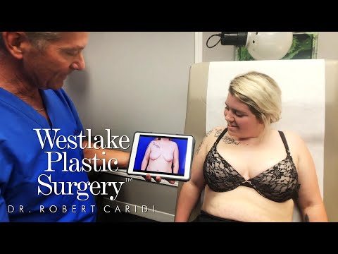 Breast Lift with Implants Surgery Before and After | Mastopexy and Augmentation