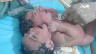 نداءات استغاثة من #ليبيا لإنقاذ #التوأمين الملتصقين