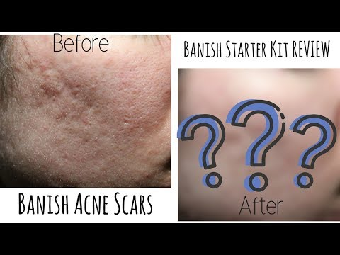 Did It Banish? BAC Banish Starter Kit Review + Before & Afters | MICHXMASH