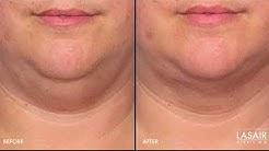 Lose Chin Fat: Kybella vs Coolsculpting l Lasair