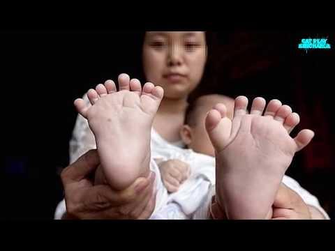 LAS MUTACIONES GENETICAS MAS RARAS DEL MUNDO | Condiciones Medicas Mas Extrañas Del Mundo