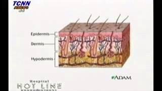 ผิวขาว กับ Laser หมอยูมิ 1/2 Thumbnail