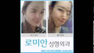 로미안성형외과 귀뒤사각턱 korean plastic s…