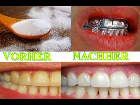 Das Passiert Wenn Du Deine Zähne Nur 1 Stunde Lang Mit Alufolie