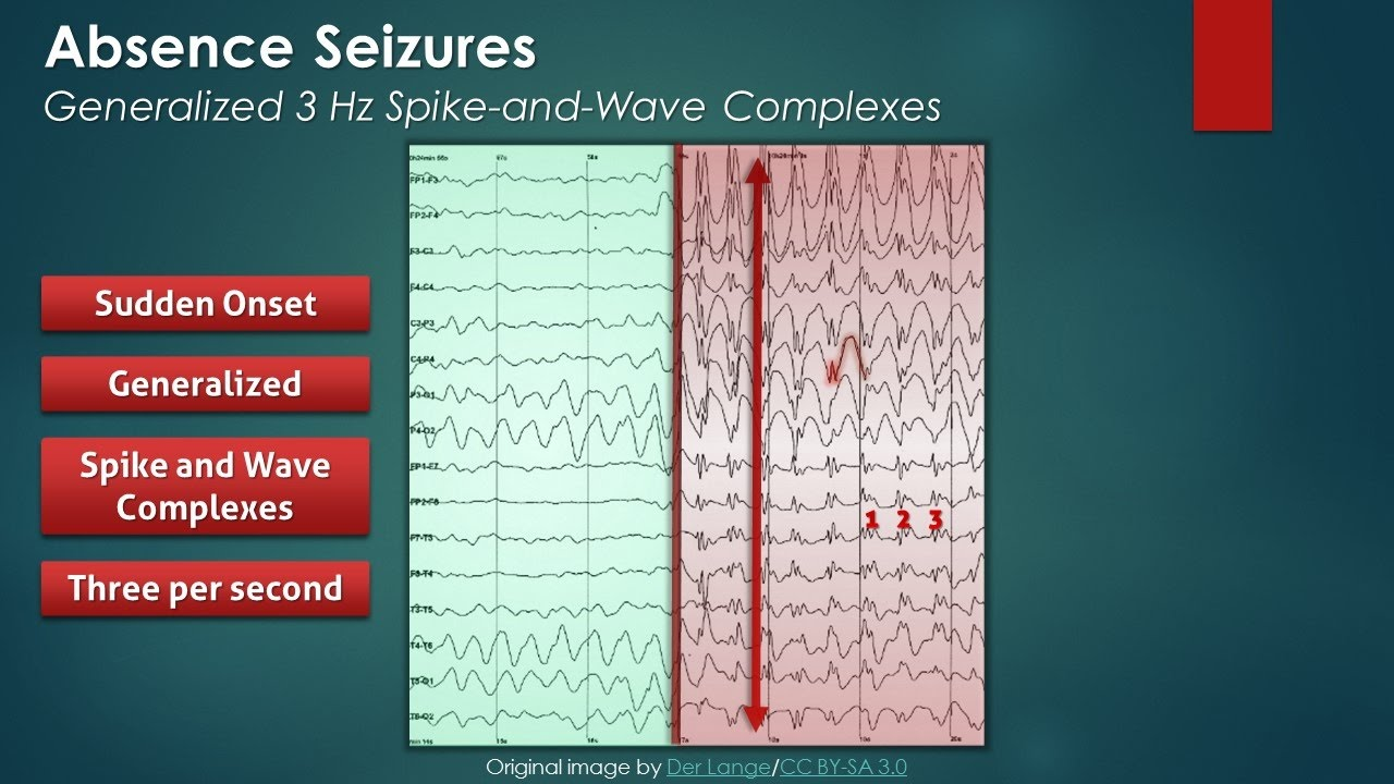 Absence Seizures: EEG Findings - YouTube