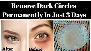 How to Remove Dark Circles in 3 days  100%Guaranteed Result Get Rid Of Dark Circles(Urdu/Hindi)
