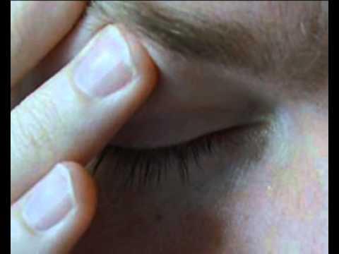 Мигрень: причины, симптомы, диагностика, лечение