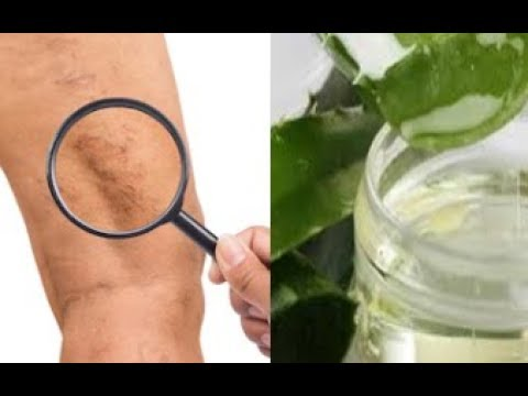 Mother Heal Varicose Veins With This Simple Recipe -  The Results Are Al...