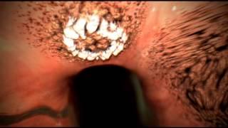Алкоголь вызывает гастрит язву, рак желудка(Алкоголь вызывает гастрит язву, рак желудка., 2013-10-11T07:08:43.000Z)