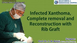 Infected Xanthoma, Complete removal and Reconstruction with Rib Graft