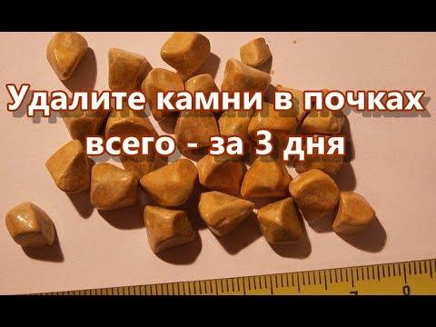 Удалите камни в почках всего   за 3 дня