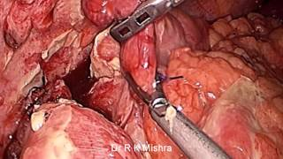 Laparoscopic Management of Ruptured Appendix