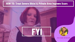 Repeat youtube video How to Treat Severe Bikini & Private Area Ingrown Scars