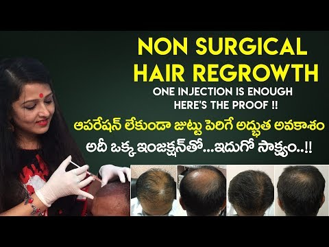 How To Regrow Hair Without Surgery ? | Dr Rajeshwari's Health Care