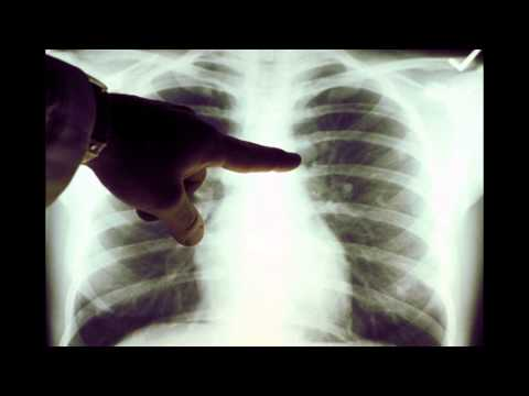 hqdefault - Sciatica X Rays Of Lung Cancer