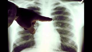 Repeat youtube video Lung Cancer X-ray