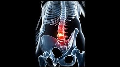 Top Herniated Disk Injury Lawyer | (818) 284-4779 | Best Los Angeles personal injury attorney