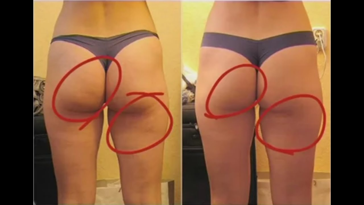 Cellulite Treatment - Watch This Review On The Best Cellulite ...