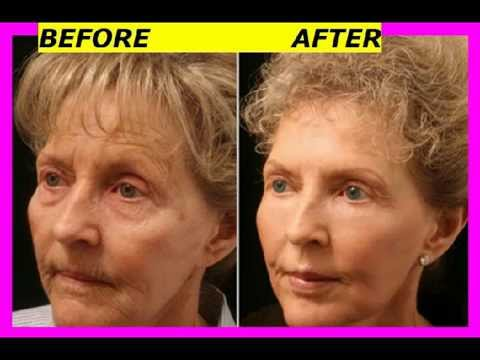 Best Eye Wrinkle Cream See Amazing Before After Photos Of Best Eye