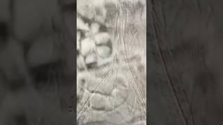 Karın ağrısı ve bacak ağrısı nedeni; karın ve kasık damarı tıkanıklığı
