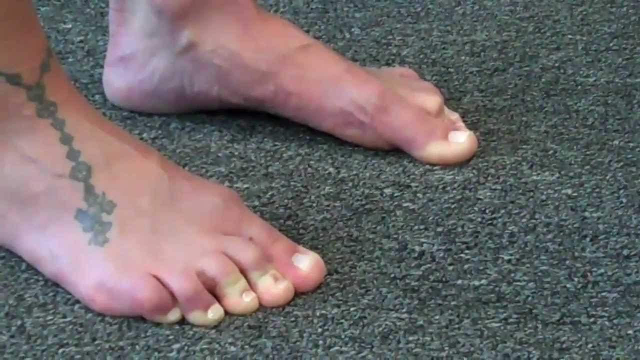 Intrinsic Foot Muscle Training Youtube