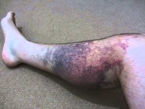 Evolution Of A Leg Hematoma Youtube