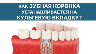 Зубные коронки: зубная коронка на разборной культевой вкладке(Культевые вкладки позволяют восстановить функциональность сильно разрушенного зуба. Часть вкладки помеща..., 2015-08-14T02:10:39.000Z)