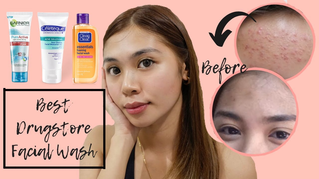 My Top 3 Drugstore Facial Wash For Acne In Just 2 Weeks Below 400 Pesos By Lhianne Lauren Youtube