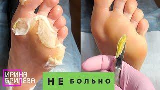 Педикюр БЕЗ неприятных ощущений Препаратный педикюр Ирина Брилёва