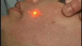 San Diego ActiveFX in action - La Jolla Cosmetic Laser Clinic Thumbnail